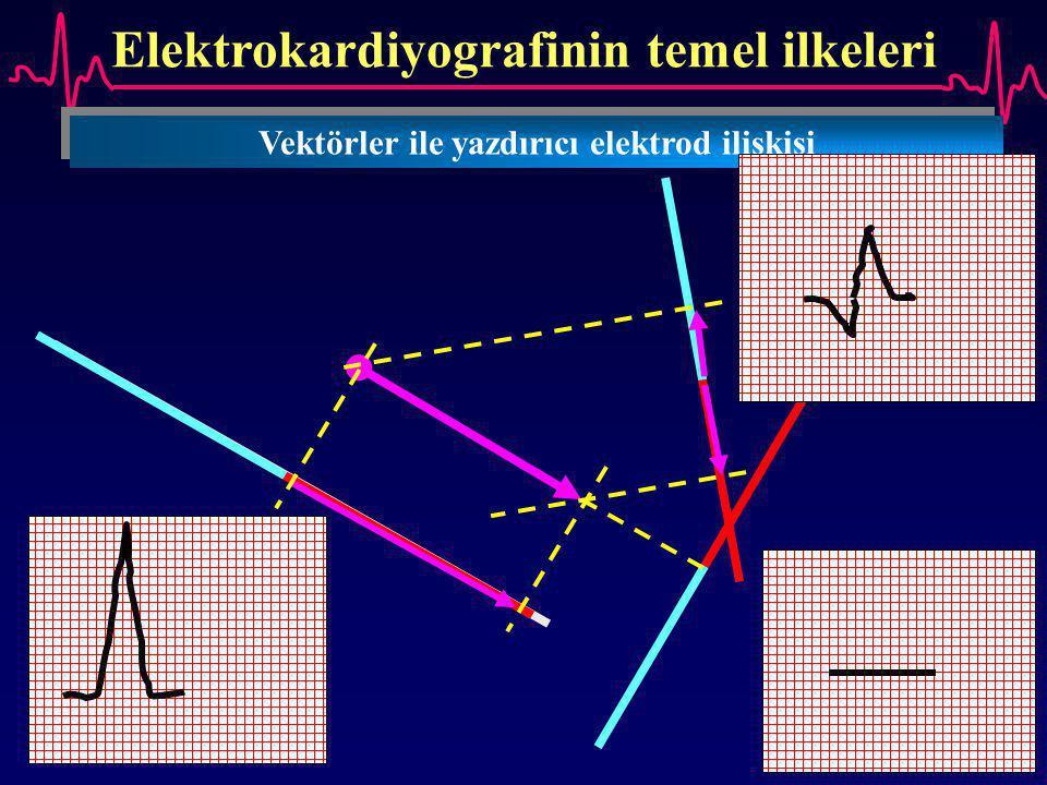 Elektrokardiyografinin temel ilkeleri Vektörler ile yazdırıcı elektrod ilişkisi