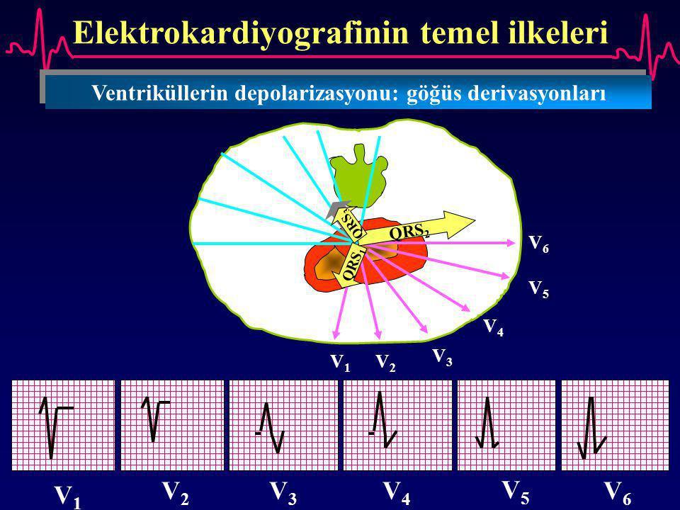 Elektrokardiyografinin temel ilkeleri Ventriküllerin depolarizasyonu: göğüs derivasyonları V1V1 V2V2 V3V3 V5V5 V6V6 V4V4 V1V1 V2V2 V3V3 V4V4 V5V5 V6V6