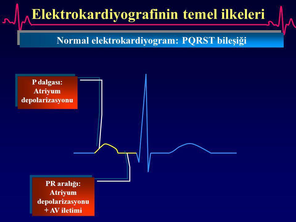 Elektrokardiyografinin temel ilkeleri Normal elektrokardiyogram: PQRST bileşiği P dalgası: Atriyum depolarizasyonu PR aralığı: Atriyum depolarizasyonu