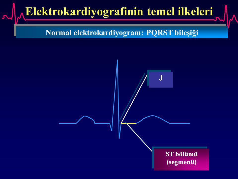 Elektrokardiyografinin temel ilkeleri Normal elektrokardiyogram: PQRST bileşiği J J ST bölümü (segmenti)