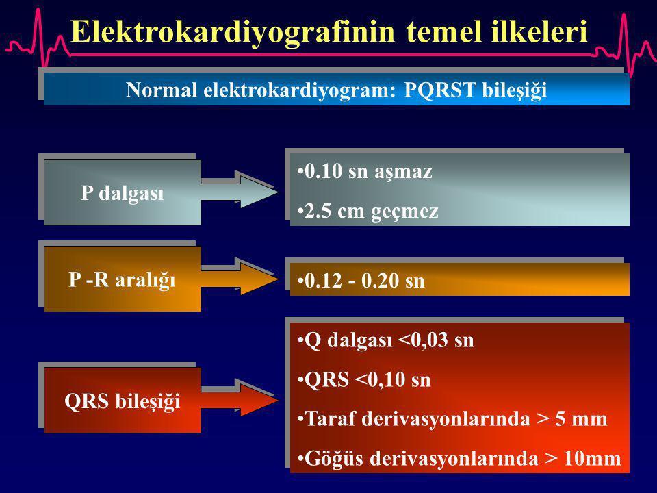 Elektrokardiyografinin temel ilkeleri Normal elektrokardiyogram: PQRST bileşiği P dalgası 0.10 sn aşmaz 2.5 cm geçmez 0.10 sn aşmaz 2.5 cm geçmez P -R