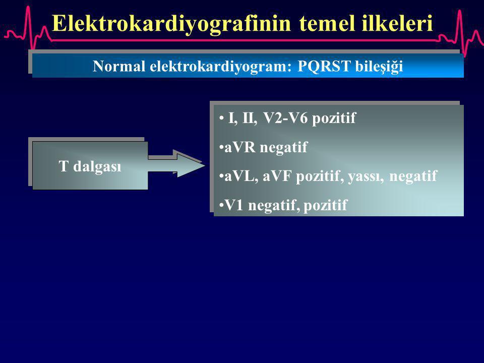 Elektrokardiyografinin temel ilkeleri Normal elektrokardiyogram: PQRST bileşiği T dalgası I, II, V2-V6 pozitif aVR negatif aVL, aVF pozitif, yassı, ne