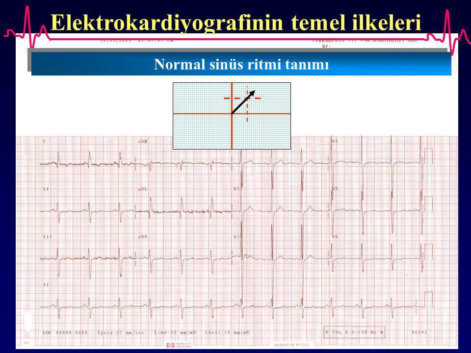 Elektrokardiyografinin temel ilkeleri Normal sinüs ritmi tanımı