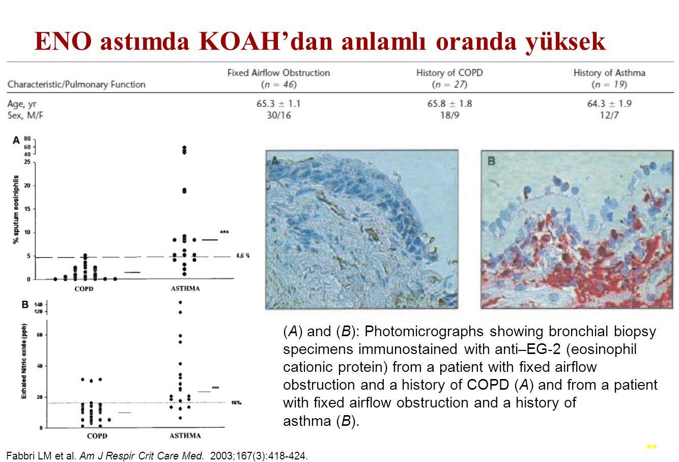 ENO astımda KOAH'dan anlamlı oranda yüksek Fabbri LM et al. Am J Respir Crit Care Med. 2003;167(3):418-424. ** (A) and (B): Photomicrographs showing b