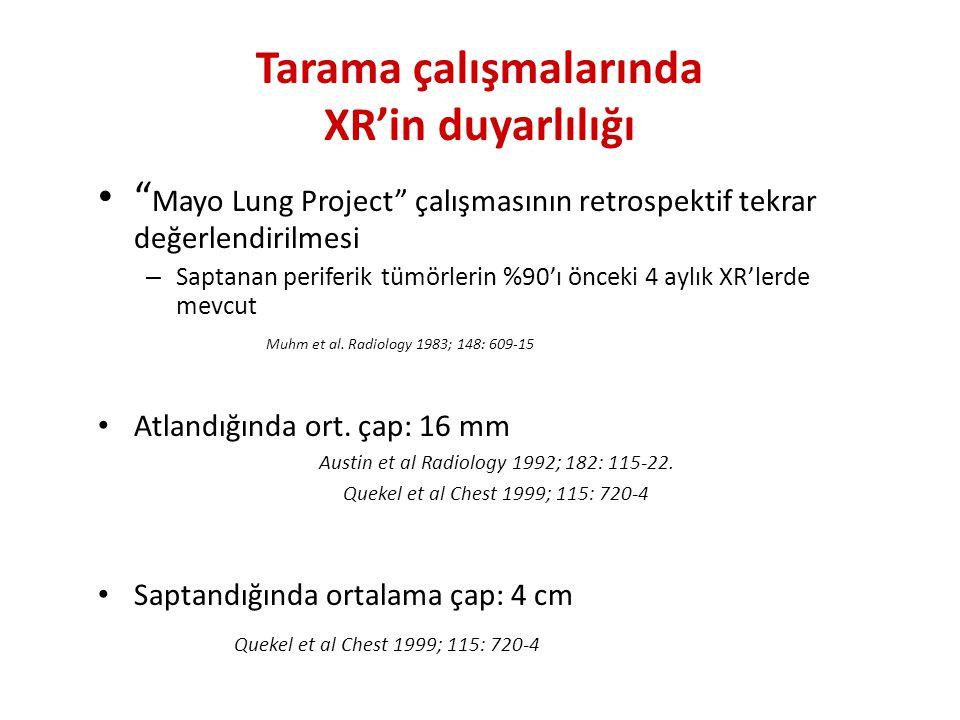 Intraparankimal lenf nodu Brandman, J Thorac Imaging 2011;26:90–105 Karsinoid TM Brandman, J Thorac Imaging 2011;26:90–105