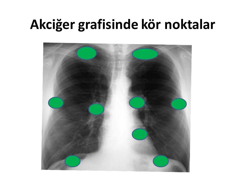 Fokal buzlu cam Malign Adenokanser Benign AAH Fokal interstisyel fibrozis Fokal enflamatuar lezyon BOOP Eozinofilik akciğer hast Aspergillozis Endometriozis Fokal hemoraji