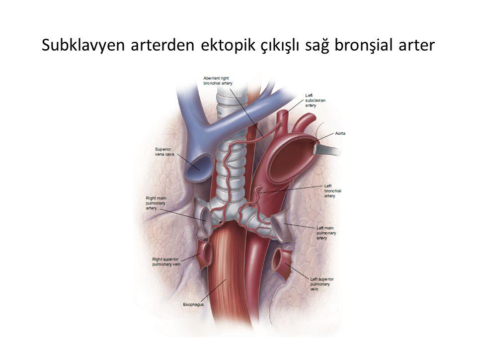 Subklavyen arterden ektopik çıkışlı sağ bronşial arter