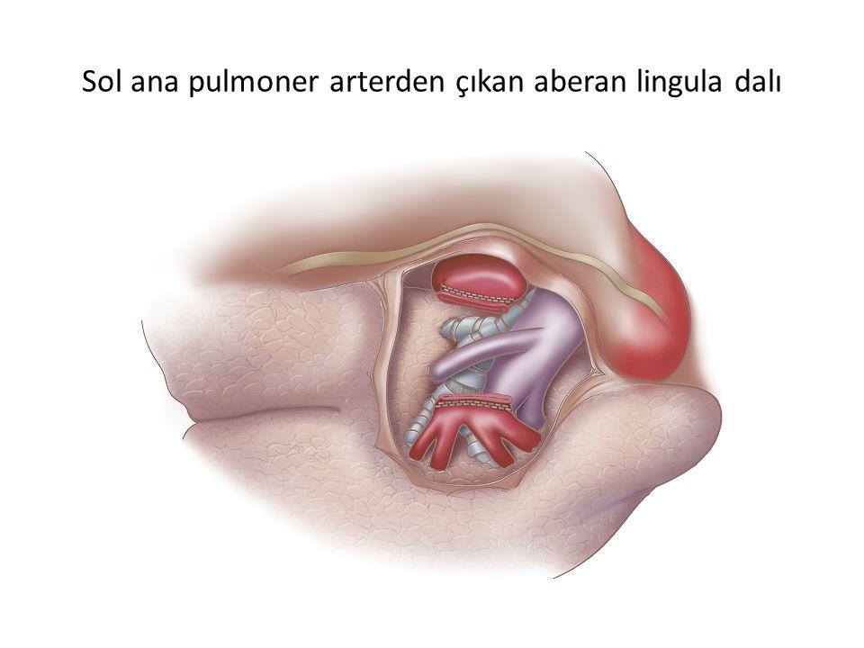Sol ana pulmoner arterden çıkan aberan lingula dalı
