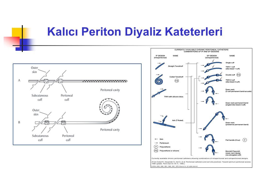 Kalıcı Periton Diyaliz Kateterleri