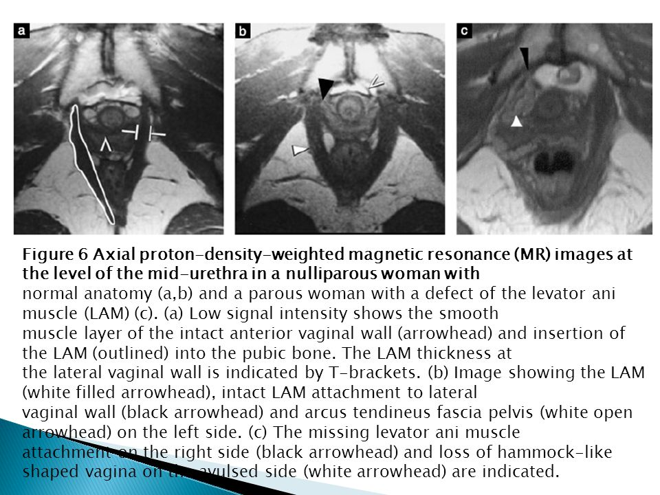 Figure 6 Axial proton-density-weighted magnetic resonance (MR) images at the level of the mid-urethra in a nulliparous woman with normal anatomy (a,b)