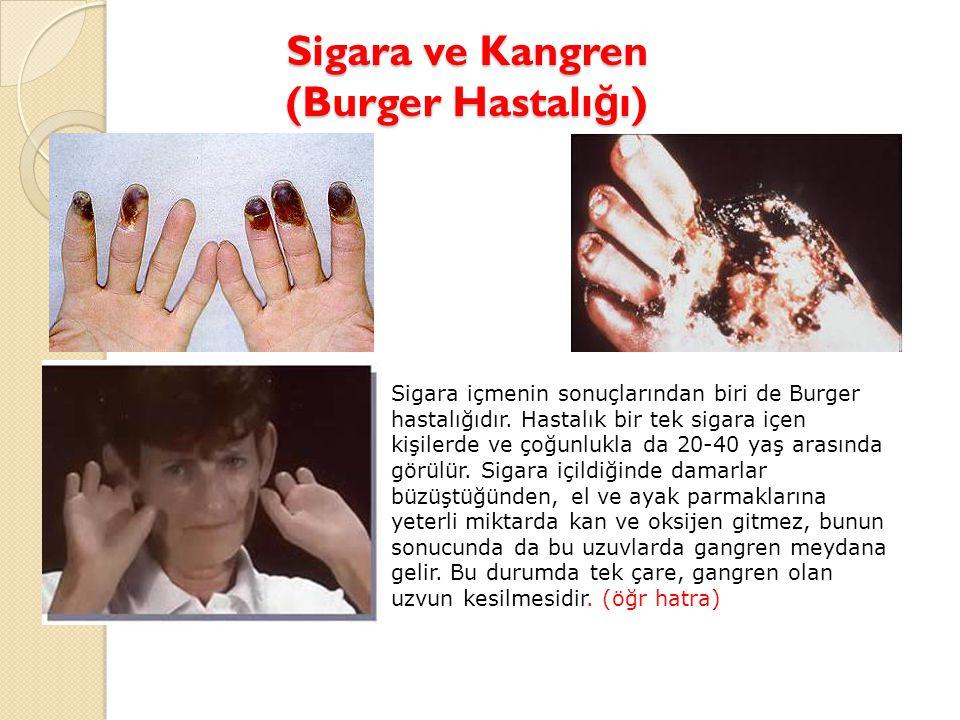 Sigara ve Kangren (Burger Hastalı ğ ı) Sigara içmenin sonuçlarından biri de Burger hastalığıdır. Hastalık bir tek sigara içen kişilerde ve çoğunlukla