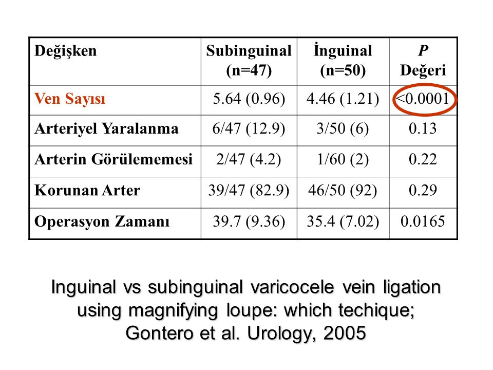 Inguinal vs subinguinal varicocele vein ligation using magnifying loupe: which techique; Gontero et al. Urology, 2005 DeğişkenSubinguinal (n=47) İngui
