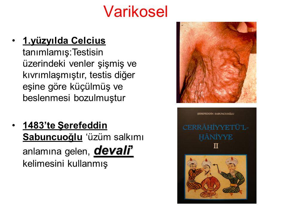 1.yüzyılda Celcius tanımlamış:Testisin üzerindeki venler şişmiş ve kıvrımlaşmıştır, testis diğer eşine göre küçülmüş ve beslenmesi bozulmuştur devali'