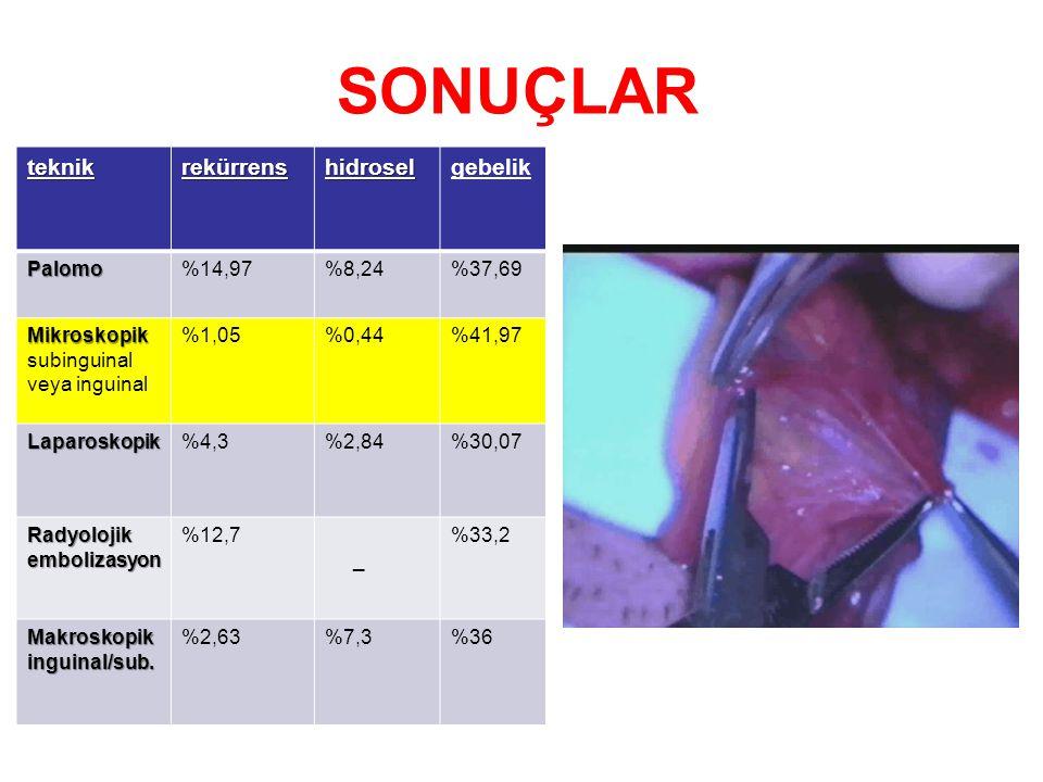 SONUÇLAR teknikrekürrenshidroselgebelik Palomo%14,97%8,24%37,69 Mikroskopik Mikroskopik subinguinal veya inguinal %1,05%0,44%41,97 Laparoskopik%4,3%2,