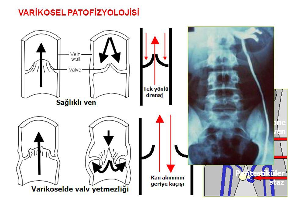Disfonksiyone testiküler ven Peritestiküler staz VARİKOSEL PATOFİZYOLOJİSİ