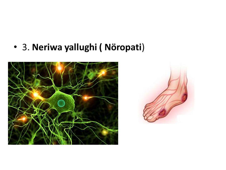 3. Neriwa yallughi ( Nöropati)