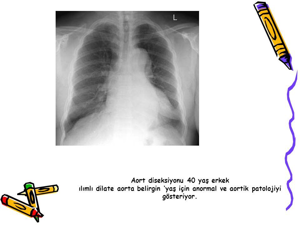 Aort diseksiyonu 40 yaş erkek ılımlı dilate aorta belirgin 'yaş için anormal ve aortik patolojiyi gösteriyor.