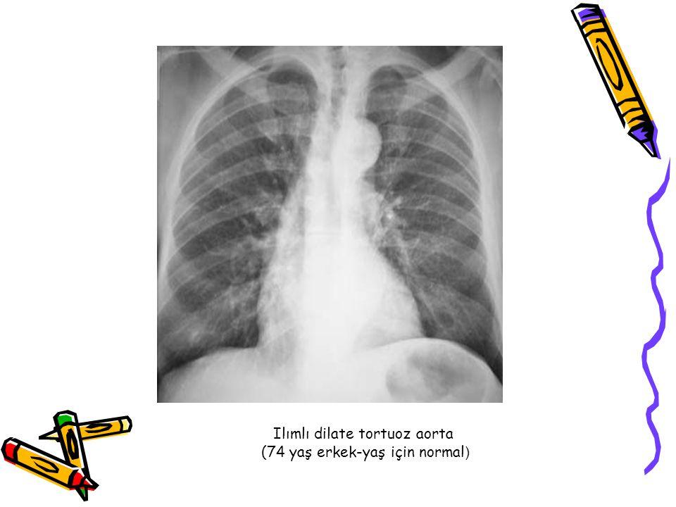 Ilımlı dilate tortuoz aorta (74 yaş erkek-yaş için normal )