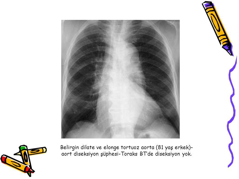 Belirgin dilate ve elonge tortuoz aorta (81 yaş erkek)- aort diseksiyon şüphesi-Toraks BT'de diseksiyon yok.