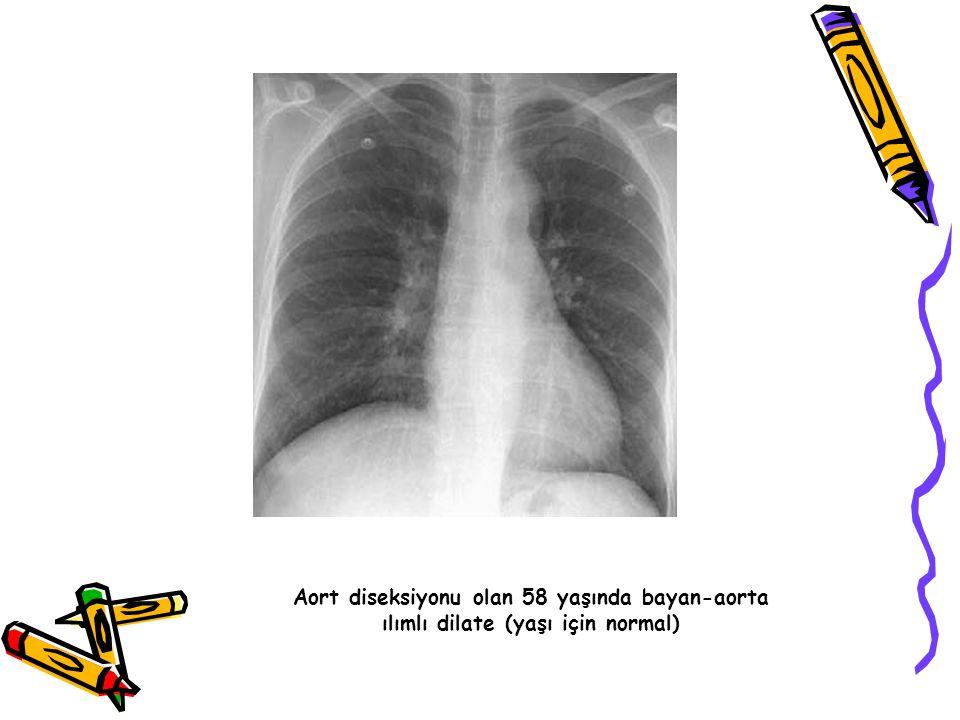 Aort diseksiyonu olan 58 yaşında bayan-aorta ılımlı dilate (yaşı için normal)