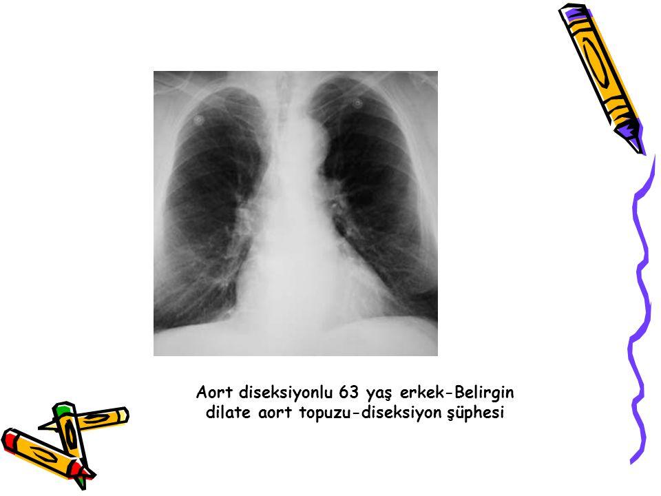 Aort diseksiyonlu 63 yaş erkek-Belirgin dilate aort topuzu-diseksiyon şüphesi