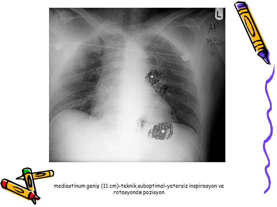 Dilate aortik ark ve elonge desendan aorta (yaşı ile ilişkili belirgin anormal ) Uzamış HT-aort diseksiyonu için risk?.