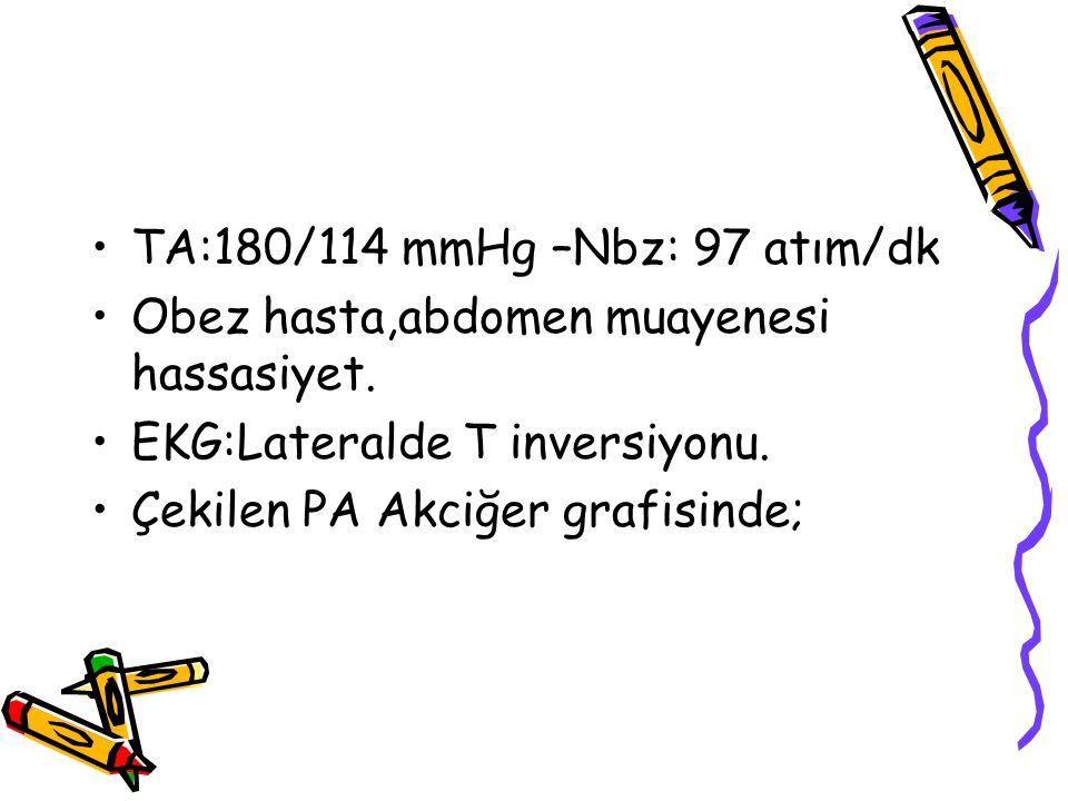 TA:180/114 mmHg –Nbz: 97 atım/dk Obez hasta,abdomen muayenesi hassasiyet. EKG:Lateralde T inversiyonu. Çekilen PA Akciğer grafisinde;