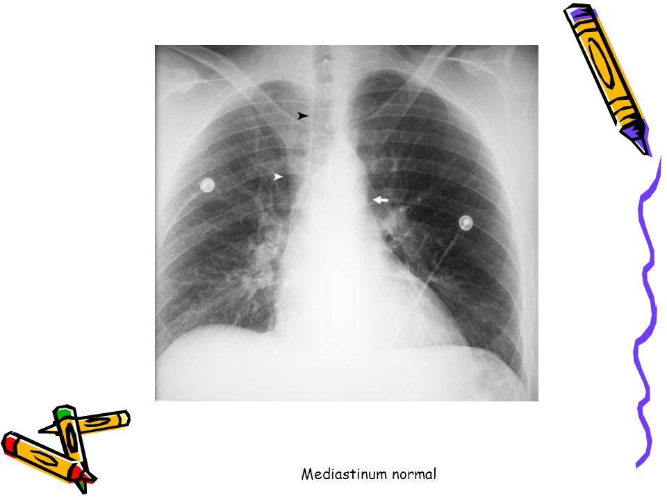 Mediastinum genişlik <6 cm Aortikopulmoner pencere (be y az ok) Sağ paratrakeal çizgi ( siyah okbaşı ).