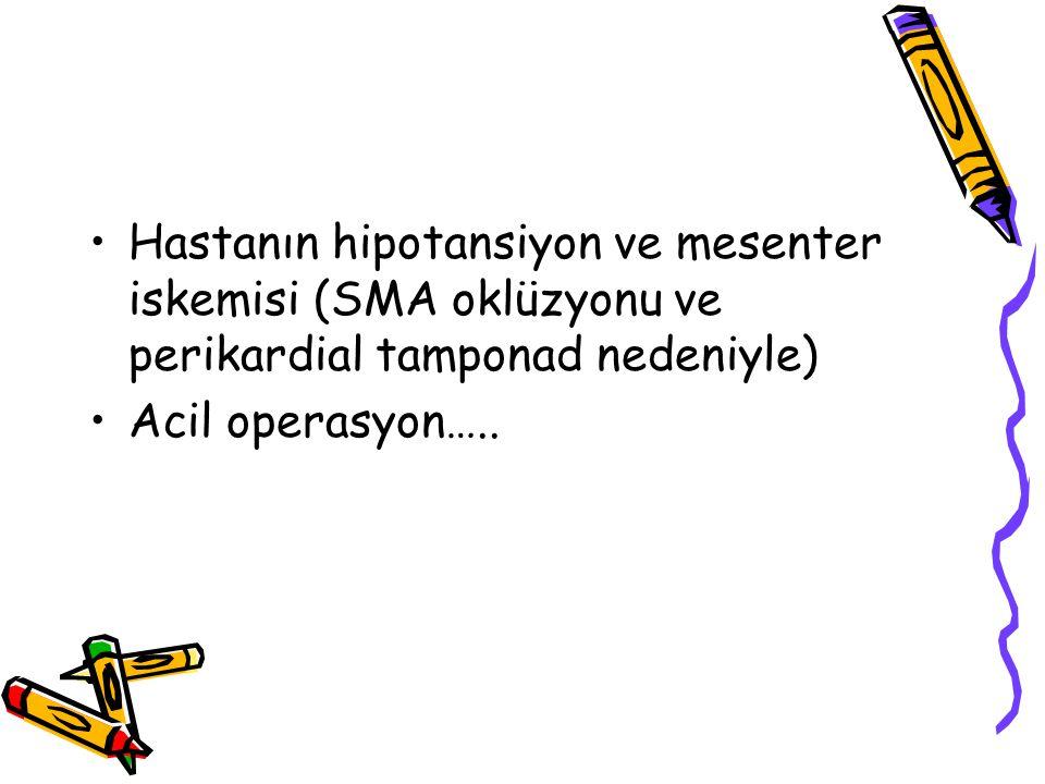 Hastanın hipotansiyon ve mesenter iskemisi (SMA oklüzyonu ve perikardial tamponad nedeniyle) Acil operasyon…..