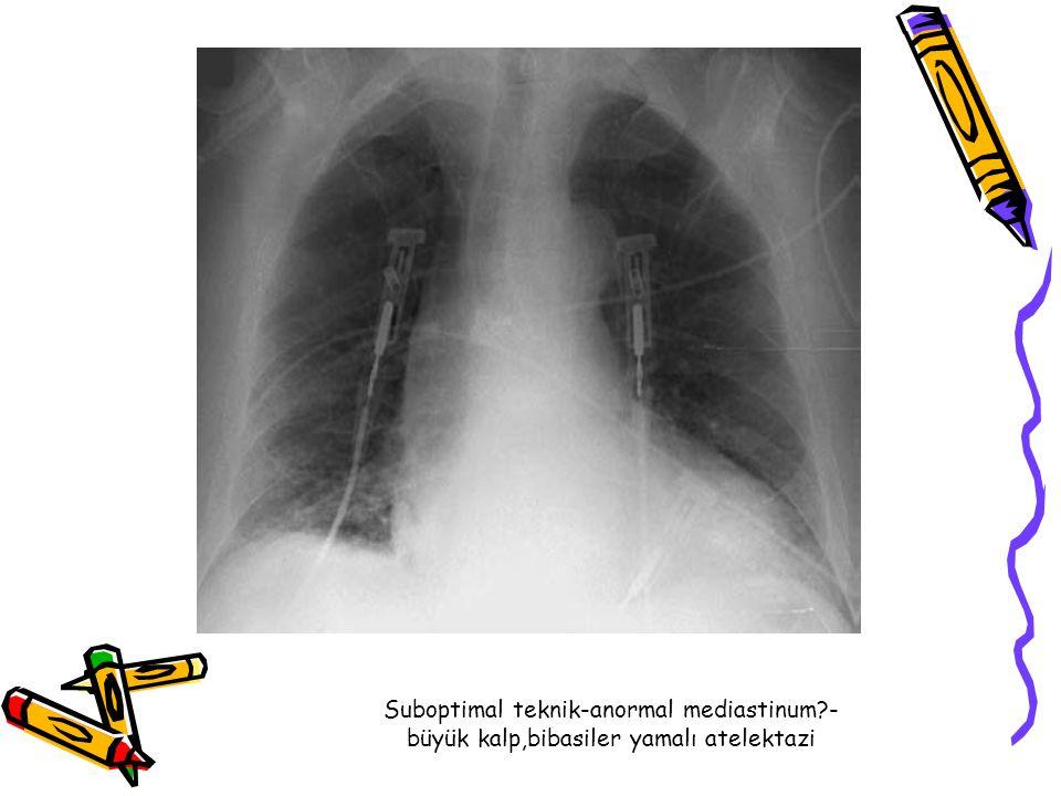 Suboptimal teknik-anormal mediastinum?- büyük kalp,bibasiler yamalı atelektazi