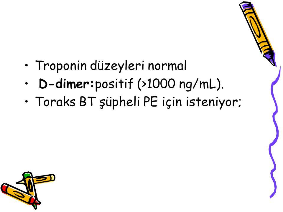Troponin düzeyleri normal D-dimer:positif (>1000 ng/mL). Toraks BT şüpheli PE için isteniyor;