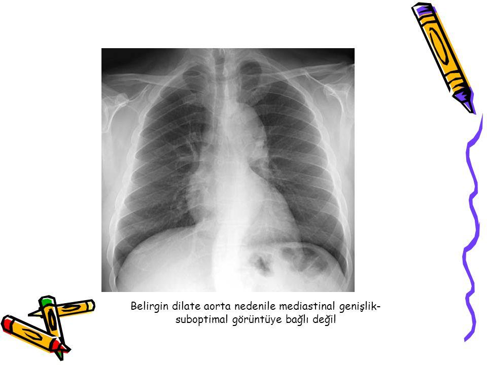 Belirgin dilate aorta nedenile mediastinal genişlik- suboptimal görüntü y e bağlı değil
