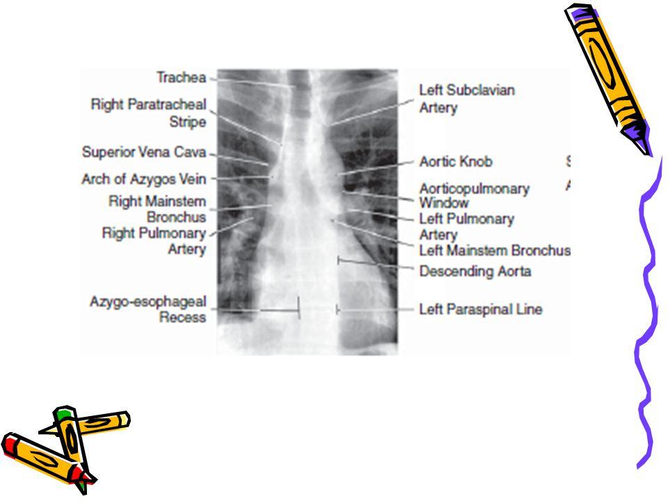 Aort diseksiyonunda radyolojik bulgular Aortun genişlemesi 'aortic enlargement' temel rad y olojik bulgu Mediastinal genişleme Önceki akciğer grafisi ile kıyaslandığında aortanın progresif genişlemesi Plevral effüzyon (genellikle sol taraf)