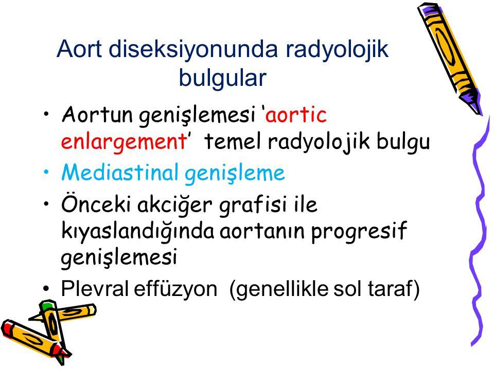 Aort diseksiyonunda radyolojik bulgular Aortun genişlemesi 'aortic enlargement' temel rad y olojik bulgu Mediastinal genişleme Önceki akciğer grafisi