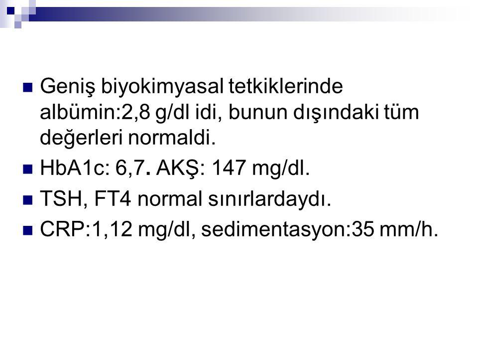 Geniş biyokimyasal tetkiklerinde albümin:2,8 g/dl idi, bunun dışındaki tüm değerleri normaldi. HbA1c: 6,7. AKŞ: 147 mg/dl. TSH, FT4 normal sınırlarday