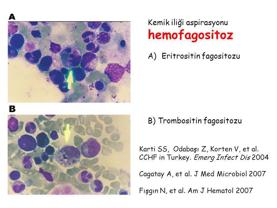 Kemik iliği aspirasyonu hemofagositoz A)Eritrositin fagositozu B) Trombositin fagositozu Karti SS, Odabaşı Z, Korten V, et al. CCHF in Turkey. Emerg I