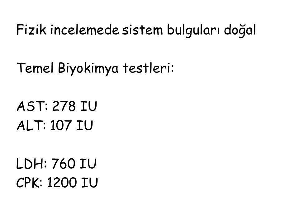 Fizik incelemede sistem bulguları doğal Temel Biyokimya testleri: AST: 278 IU ALT: 107 IU LDH: 760 IU CPK: 1200 IU