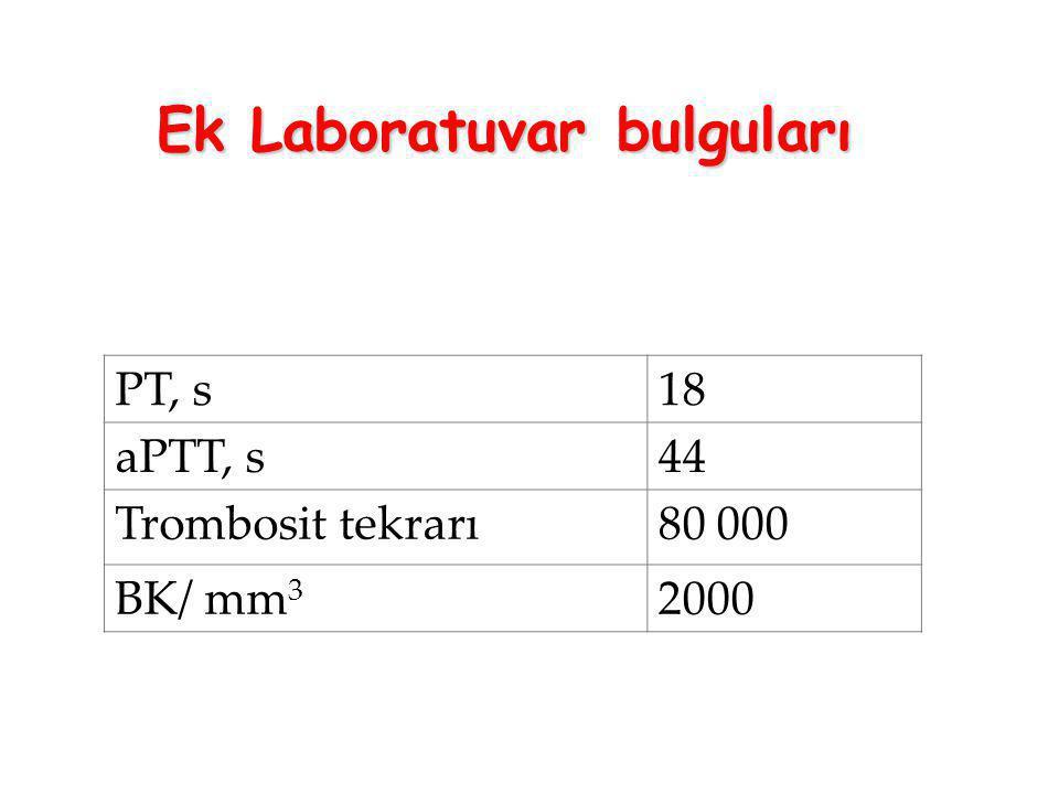 PT, s1818 aPTT, s44 Trombosit tekrarı80 000 BK/ mm 3 2000 Ek Laboratuvar bulguları