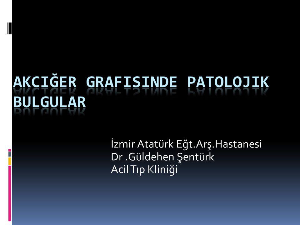 diffuz ince retikular pattern ( intertisyel infiltrasyon ve beneksi non-homojen konsolidasyondan dolayı)