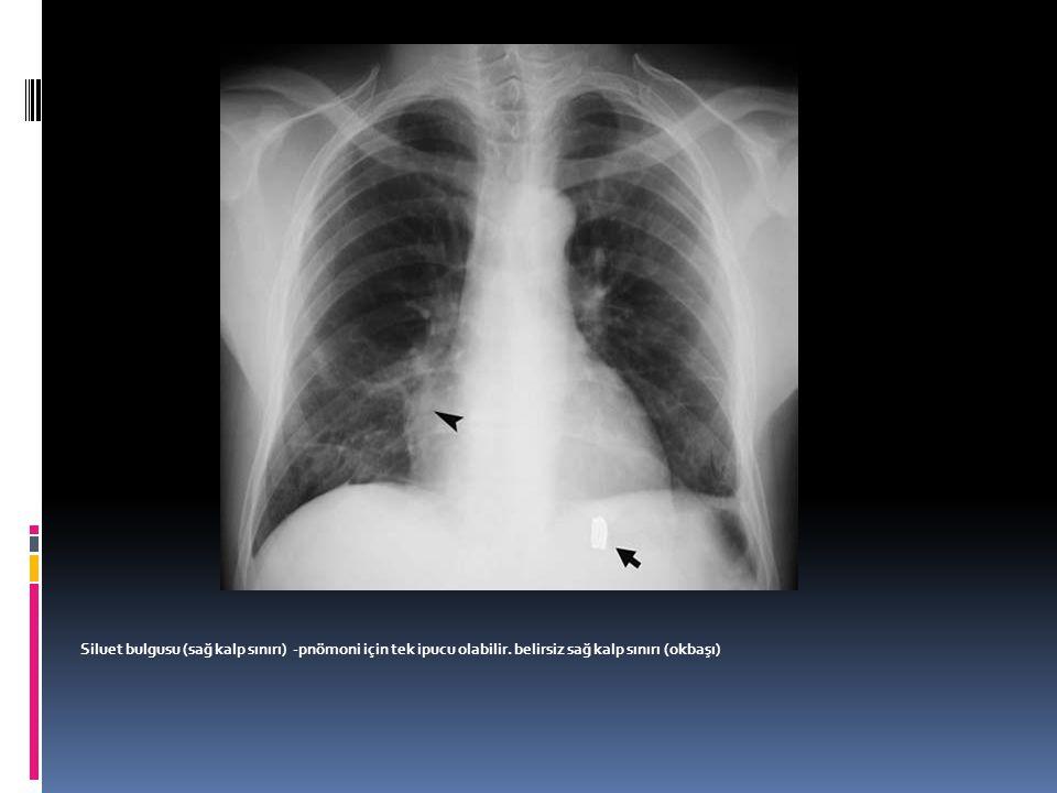 Siluet bulgusu (sağ kalp sınırı) -pnömoni için tek ipucu olabilir. belirsiz sağ kalp sınırı (okbaşı)