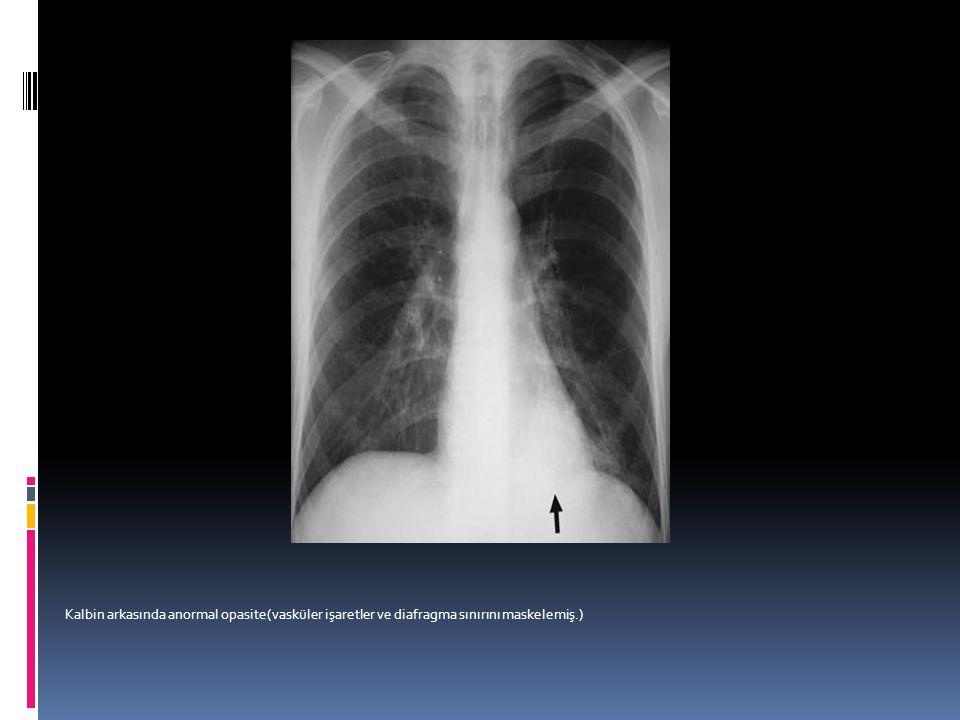 Kalbin arkasında anormal opasite(vasküler işaretler ve diafragma sınırını maskelemiş.)