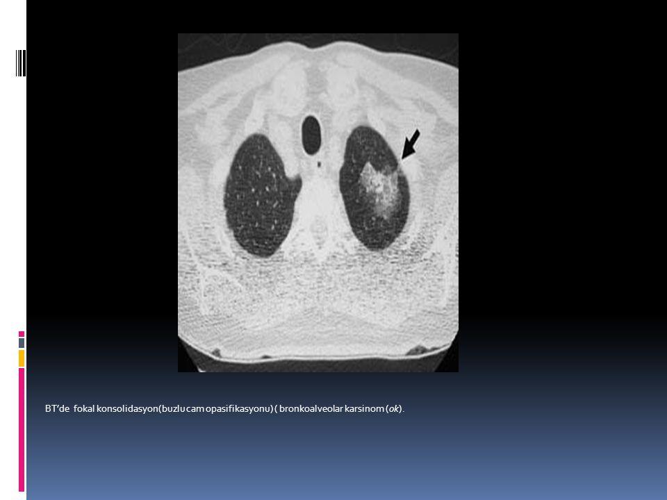 BT'de fokal konsolidasyon(buzlu cam opasifikasyonu) ( bronkoalveolar karsinom (ok).