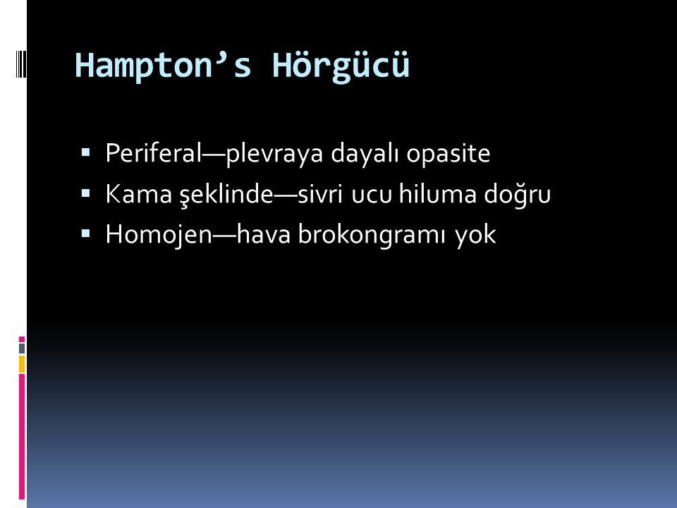 Hampton's Hörgücü  Periferal—plevraya dayalı opasite  Kama şeklinde—sivri ucu hiluma doğru  Homojen—hava brokongramı yok