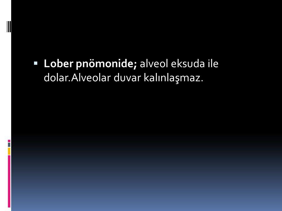  Lober pnömonide; alveol eksuda ile dolar.Alveolar duvar kalınlaşmaz.