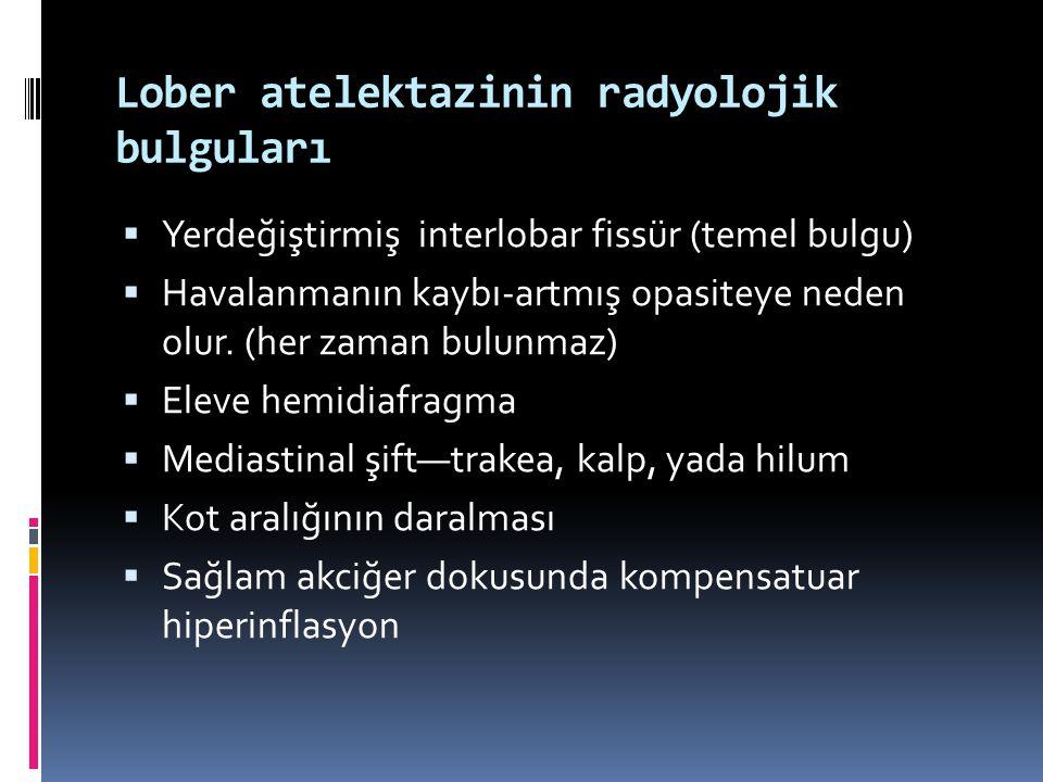 Lober atelektazinin radyolojik bulguları  Yerdeğiştirmiş interlobar fissür (temel bulgu)  Havalanmanın kaybı-artmış opasiteye neden olur. (her zaman