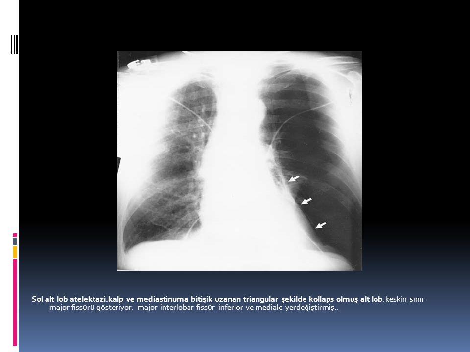 Sol alt lob atelektazi.kalp ve mediastinuma bitişik uzanan triangular şekilde kollaps olmuş alt lob.keskin sınır major fissürü gösteriyor. major inter