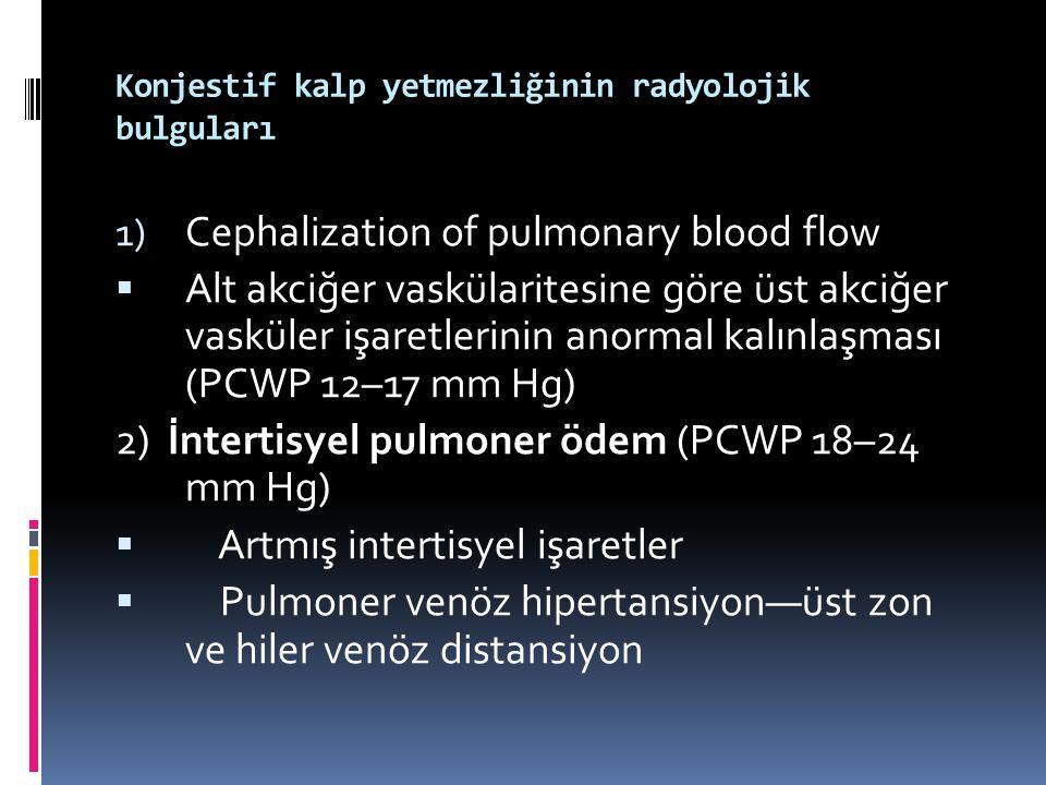 Konjestif kalp yetmezliğinin radyolojik bulguları 1) Cephalization of pulmonary blood flow  Alt akciğer vaskülaritesine göre üst akciğer vasküler işa