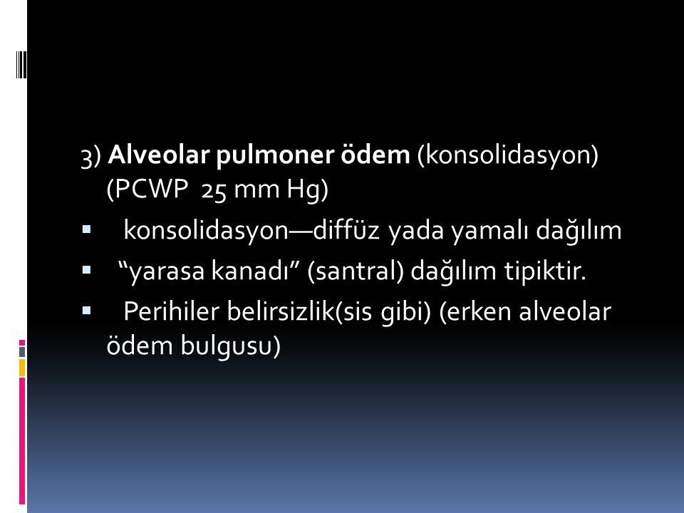 "3) Alveolar pulmoner ödem (konsolidasyon) (PCWP 25 mm Hg)  konsolidasyon—diffüz yada yamalı dağılım  ""yarasa kanadı"" (santral) dağılım tipiktir.  P"