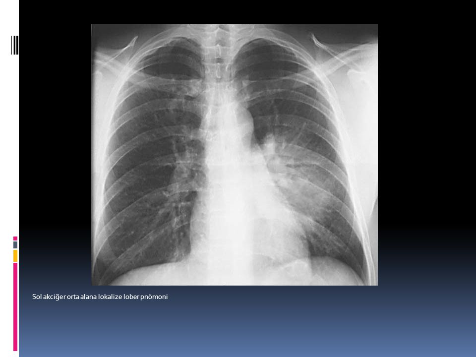 Sol alt lob atelektazi.kalp ve mediastinuma bitişik uzanan triangular şekilde kollaps olmuş alt lob.keskin sınır major fissürü gösteriyor.