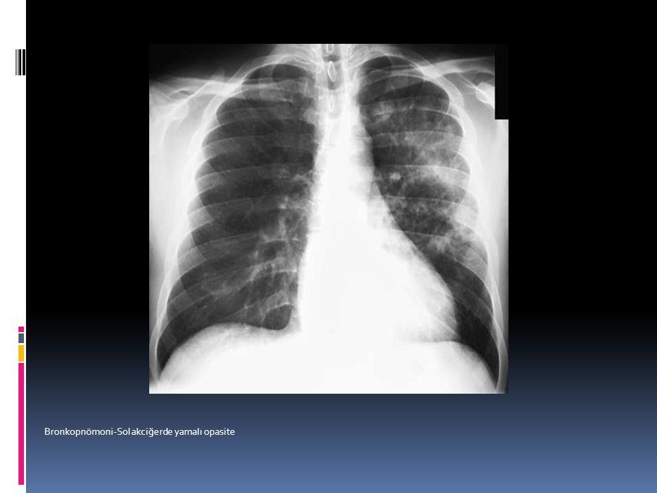 Bronkopnömoni-Sol akciğerde yamalı opasite